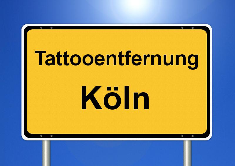 Tattooentfernung Köln