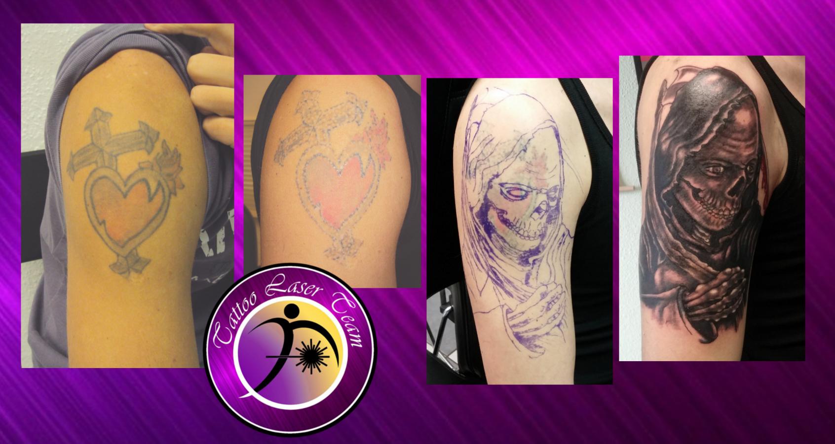 Tattoo Enternung für Cover Up