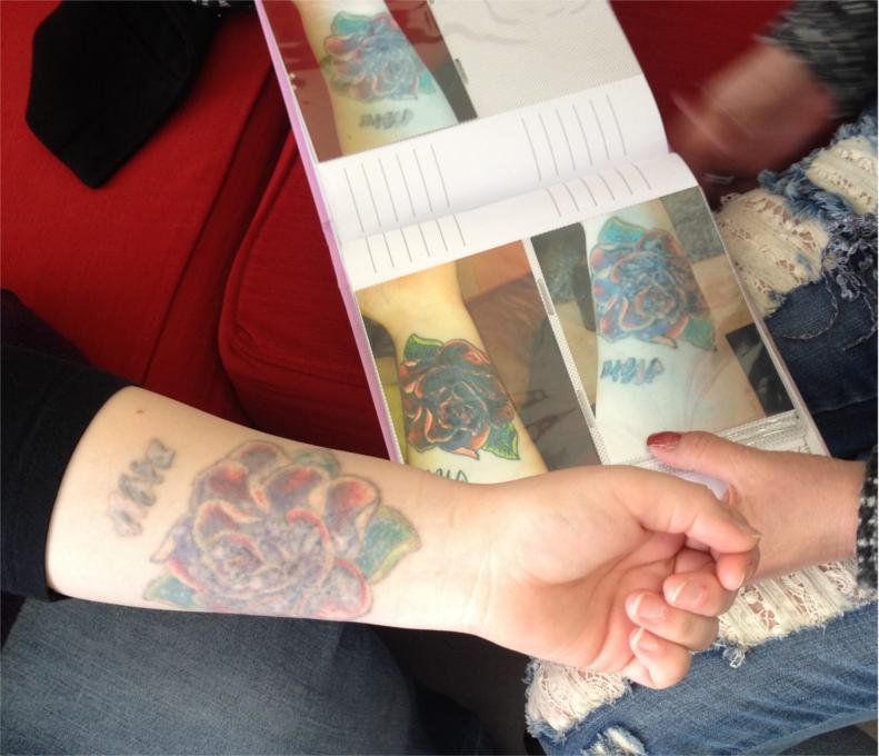 Tattooentfernung Dokumentation